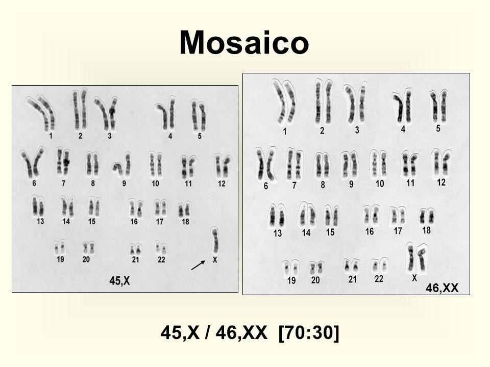 Mosaico 46,XX 45,X / 46,XX [70:30]
